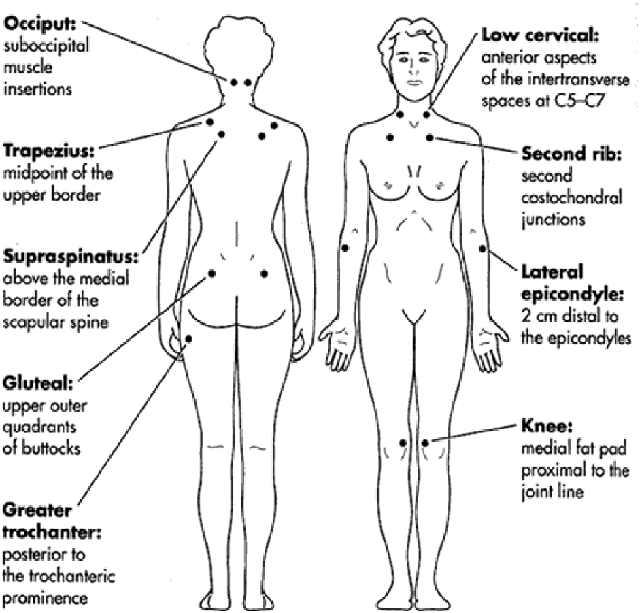 Fibromyalgia, פיברומיאלגיה, דאבת, טיפולי מים, בריכה פרטית, וואטסו, פתרון, כאבי גב, טיפול , אורי ורד, מים אדמה, מרכז טיפולים, בנימינה, עמיקם