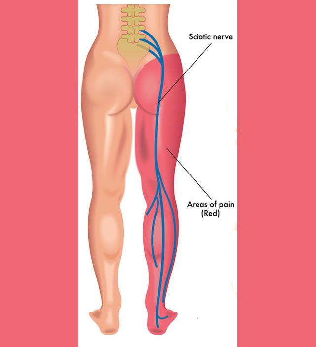אישיאס, העצב הסיאטי, סיאטיקה, כאבי גב, שחרור גב,עיסוי רפואי, עיסוי ספורטאים